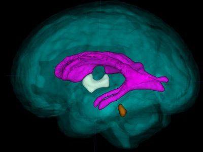 3DMRI