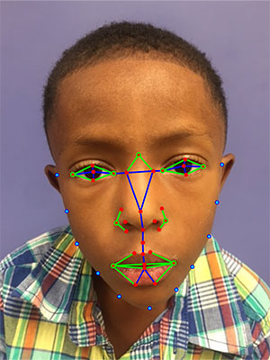 Facial Analysis Technology