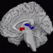 Adolescent brain scan from obesity study