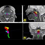 Volumetric imaging of upper airways