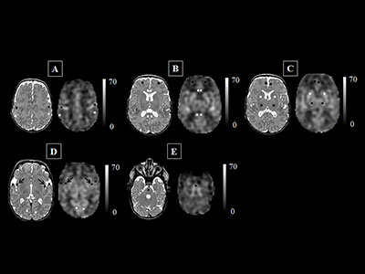 the cerebral blood flow (CBF) maps, corresponding anatomical image aligned to the CBF map, and the regions of interest examined