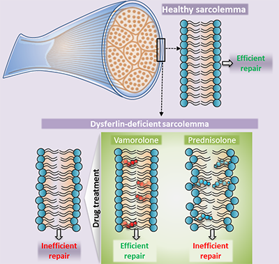 Lack of dysferlin is associated with increased lipid mobility in the LGMD2B cell membrane