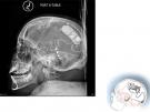NeuroPace RNS x-ray
