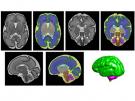 preterm brain scans