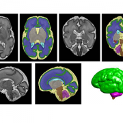 preterm brain scans
