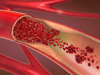3d illustration of a constricted and narrowed artery