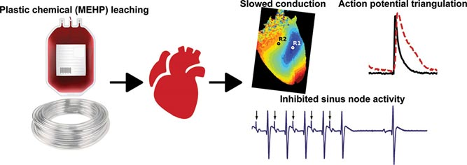 changes in heart rhythm due to plastics