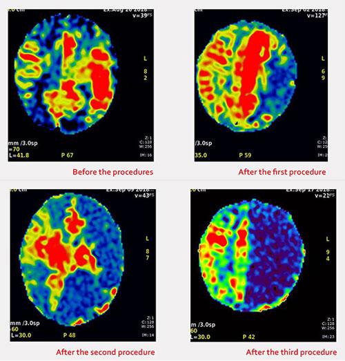 bella's brain scans