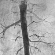 Pediatric angiography