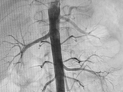 Pediatric angiography