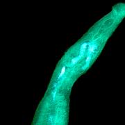 Schistosoma