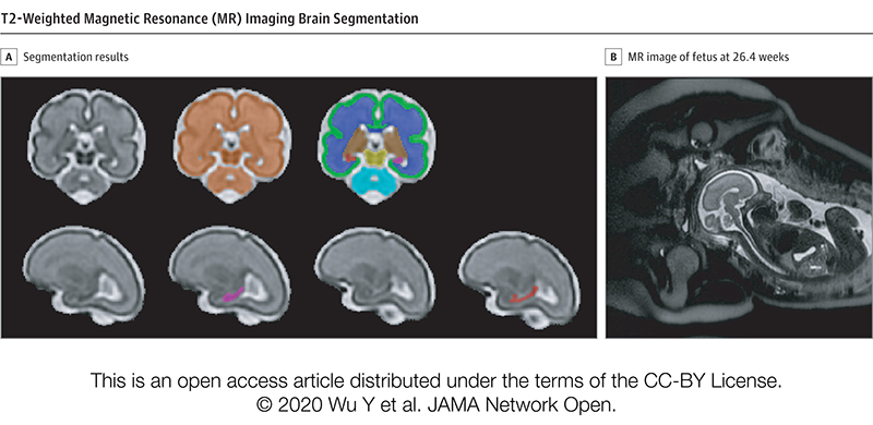 T2-Weighted Magnetic Resonance (MR) Imaging Brain Segmentation.