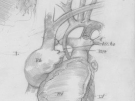 tiny stent illustration