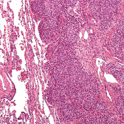 Intermediate magnification micrograph of Ewing sarcoma in lung