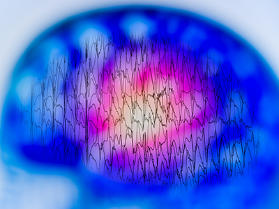 EEG with electrical activity of abnormal brain