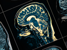 MRI of the patient's head close-up