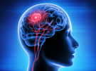 person with brain tumor