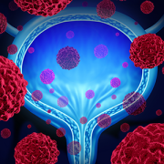conceptual image of bladder cancer
