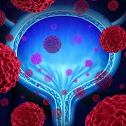 conceptual image of bladder cancer