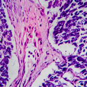 light micrograph of wilms tumor