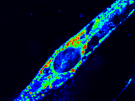 Injury triggered change in ER calcium of a muscle cell