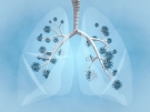 illustration of lungs with coronavirus inside