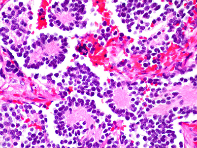 """Neuroblastoma of the Adrenal Gland (2)"" by euthman is licensed under CC BY 2.0"