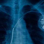chest x-ray showing pacemaker