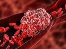 Blood Clot or thrombus