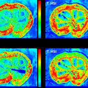 multimodal imaging images