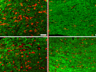 A transient low-dose MEKi treatment in a pre-clinical model prevents NF1-OPG formation