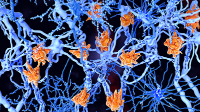microglia cells damage the myelin sheath of neuron axons